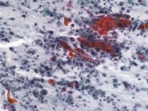 喀痰中の癌細胞