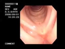 喉頭白斑症術後