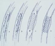 血管形成術(PTA) 風船(バルーン)のついた細いカテーテル