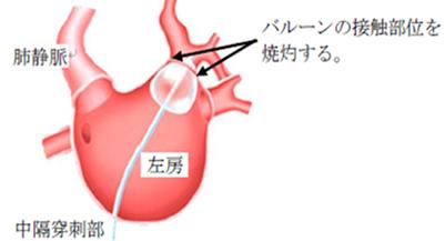 発作性心房細動に対するホットバルーン法